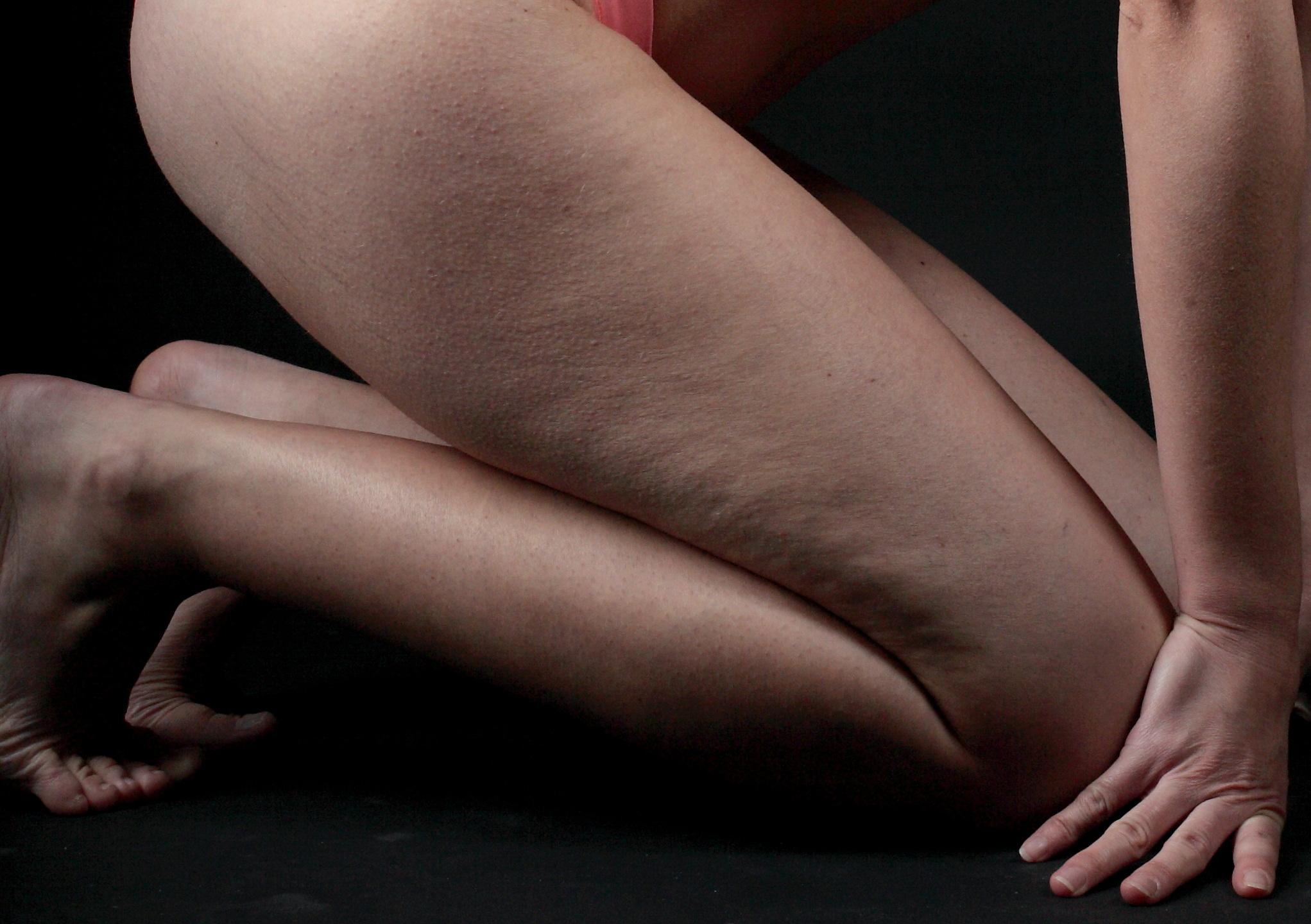 Perdre la cellulite, drainage lymphatique